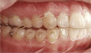 situația intraorală a unei clinice similare Caz cu paranteze în dinți 13 și 46.
