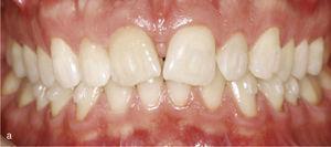 Sectorul antrosuperior cu 11 și 21 dinți în mesioversion și triunghiul neagră interdental (A). Atașamentele dreptunghiulare verticale au fost plasate pe dinții 11 și 21 și în anteriorul adiacent. Rezultatul tratamentului după îndreptarea dinților 11 și 21 și închiderea triunghiului negru (b).