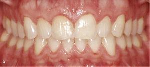 Sectorul anterosuperior cu 11 și 21 dinți în mesioversion și triunghi negru interdental (la) . Atașamentele dreptunghiulare verticale au fost plasate pe dinții 11 și 21 și în anteriorul adiacent. Rezultatul tratamentului după îndreptarea dinților 11 și 21 și închiderea triunghiului negru (b).