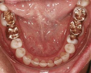 Sector anterosuperior cu 11 și 21 dinți în mesioversion și triunghi negru interdental (la) . Atașamentele dreptunghiulare verticale au fost plasate pe dinții 11 și 21 și în anteriorul adiacent. Rezultatul tratamentului după îndreptarea dinților 11 și 21 și închiderea triunghiului negru (b).