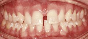 Vista intraoral dos dentes anteriores separados uns dos outros e os anexos dos dentes 13, 11, 21 e 23 para o peche dos espazos e tamén nos dentes inferiores 33, 34, 35, 43, 44 e 45 para obter a áncora necesaria para a intrusión dos dentes anteróidios (a). Vista intraoral do resultado despois do peche de espazos e a creación dunha exhibición horizontal fisiolóxica e vertical (B).