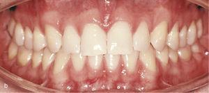 Vedere intraorală a dinților anteriori separați unul de celălalt și Din atașările din dinții 13, 11, 21 și 23 pentru închiderea spațiilor și, de asemenea, asupra dinților inferiori 33, 34, 35, 43, 44 și 45 pentru a obține ancora necesară pentru intruziunea dinților anteroidali (A). Vizualizarea intraorală a rezultatului după închiderea spațiilor și crearea unui submark orizontal și vertical fiziologic (B).