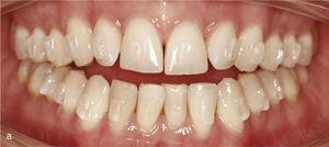 Vizualizare intraorală Situația cu muscatura anterioară deschisă și contactele ocluzale numai pe dinții 14 până la 47 și 27 până la 37. Absența ghidajului canin (A). Ataches pe dinți 15 până la 25 și 35 până la 45 pentru extrudarea mișcării. Rezultatul final cu oxmark orizontală și verticală fiziologică (B).