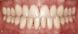 Vedere intraorală a situației cu muscatura deschisă anterioară și contactele ocluzale numai pe dinții 14 până la 47 și 27 la 37. Absența Ghidului Canine (A). Ataches pe dinți 15 până la 25 și 35 până la 45 pentru extrudarea mișcării. Rezultatul final cu oxmark orizontală și verticală fiziologică și ghidul canin (b).