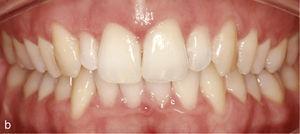 Vedere intraorală a situației cu dinți înălțați 13 și 23, dinții ridică 12 și 22 și lipsa armoniei în linia gingivală. Situația după tratamentul cu Invisalign: Formarea arcadelor armonioase și nivelarea înălțimii gingivale (b).