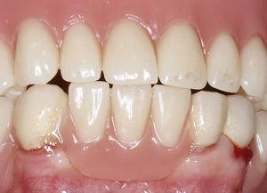Zonas de transición poco favorables: si las transiciones entre las coronas telescópicas y la base de la prótesis se unen mediante polimerización se dificulta la limpieza y se favorece la adhesión de placa y la aparición de irritaciones.