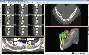Captura de pantalla de SimPlant Crystal, uno de los programas más «veteranos» de planificación de implantes.