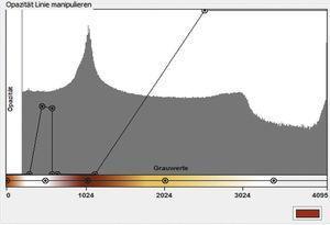 Definición de un perfil de densidad concreto para renderización de volumen en SimPlant Crystal.
