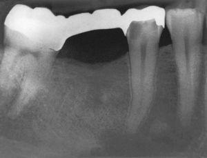 Imagen preoperatoria del diente 45 con una caries que se extiende hasta las proximidades de la pulpa. Se llevó a cabo una endodoncia (extraído de Georgi y Hülsmann21).