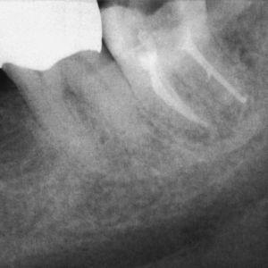 Paciente VIH positivo: radiografía de control tras la obturación de los conductos radiculares en el diente 37, el cual estaba asociado a una periodontitis apical.