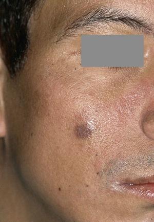 Sarcoma de Kaposi extraoral como dolencia definitoria del SIDA (extraído de Schäfer55).