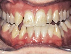 Vista intraoral frontal del inicio del tratamiento.
