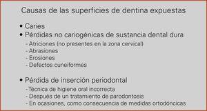 Posibles causas de las superficies de dentina expuestas.