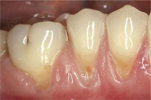 Cuello dental hipersensible que se tratará con la pasta dentífrica Elmex® Sensitive Professional™ Des- ensitizing Paste.