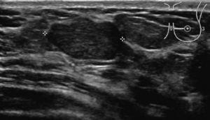 Nódulo palpable en paciente de 28 años localizado en CII de mama izquierda. Ecografía: nódulo ovalado, orientación paralela, hipoecogénico y homogéneo sin atenuación del sonido, de borde lobulado. BI-RADS® 4a. BAG ecoguiada: fibroadenoma.