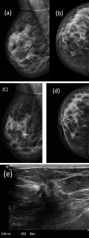 Paciente de 52 años estudiada en campaña de cribado poblacional. Imagen interpretada como asimetría BI-RADS® 3 localizada en cuadrante interno de mama izquierda en proyección CC (b), no claramente visible en proyección oblicua (a). Proyección CC y oblicua de esta misma mama tras el seguimiento (c y d): nódulo espiculado asociado a microcalcificaciones pleomórficas BI-RADS® 5 en CSI. Nódulo visualizado en ecografía BI-RADS® 5 (e). BAG ecoguiada: CDI. No se realizaron proyecciones complementarias ni ecografía sobre la asimetría inicial. Error por infraestimación.