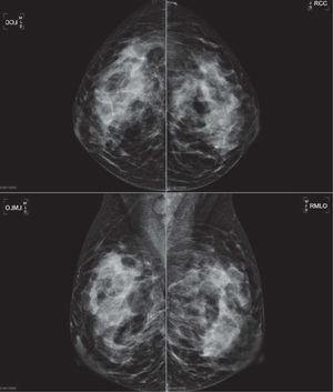 Mujer de 24 años, que acude por palparse tumoración de nueva aparición en cuadrante supero-externo de la mama izquierda. La mamografía muestra una zona asimétrica con efecto de masa de contornos mal delimitados, en el contexto de una mama de densidad aumentada, y una imagen a nivel de la axila izquierda de una adenopatía aumentada de tamaño, sin hilio y de morfología redondeada.