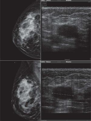 Ecografía de la misma paciente en la que se observa, subyacente a la zona palpable, una lesión nodular sólida, sin claros criterios ecográficos de malignidad y que puede confundirse con una lesión benigna (contornos lobulados y eje mayor de la lesión paralelo a la piel suprayacente). El tamaño de la lesión es de 23mm. La biopsia percutánea de la lesión demostró un carcinoma ductal infiltrante de grado histológico 3, con extensas áreas de necrosis tumoral asociada (RE—, RP—, factor de crecimiento epidérmico humano 2 [HER2—]). La punción aspiración con aguja fina de la adenopatía fue positiva para células malignas.