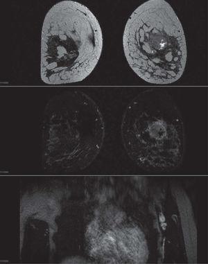 Resonancia magnética de estudio de extensión, en la que se muestra una masa en cuadrante supero-externo que, en la secuencia en T2, se observa aumentada de intensidad y con áreas líquidas en su interior que se correlacionan con las áreas de necrosis que se describen en la anatomía patológica. La lesión mide 33mm de diámetro, que concuerda con el diámetro patológico. El estudio con contraste —imagen de sustracción central— muestra una captación periférica en anillo, con áreas de ausencia de captación central correspondientes a las zonas necróticas. En la imagen inferior se observan adenopatías axilares de aspecto patológico y aumentadas de tamaño, una de las cuales se corresponde con la adenopatía puncionada ecográficamente. El contexto de los hallazgos, junto con la edad de la paciente, indican que puede corresponder a un tumor triple negativo con el subtipo ligado a la mutación germinal BRCA1.