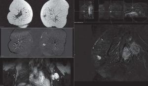 El estudio de extensión mediante resonancia magnética identifica un tumor de 10mm en cuadrantes internos de la mama izquierda asociado a adenopatías de gran tamaño a nivel axilar. Aunque se trata de una lesión de pequeño tamaño, mantiene las características habituales en estos tumores: hiperintensidad en T2, márgenes irregulares y captación anular periférica. Este grupo de pacientes triple negativo puede manifestar esta discordancia entre tamaño tumoral y afectación axilar masiva.