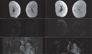 Se muestran 2 estudios de control de la respuesta a quimioterapia primaria. A la izquierda, el estudio intermedio y, en la columna de la derecha, el estudio prequirúrgico. En el estudio intermedio ya se demuestra respuesta completa del tumor local y de las adenopatías. Se confirma patológicamente que corresponde a un estadio G5 de la clasificación de Miller y Payne.