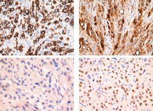 Panel de inmunohistoquímica. A. Positividad para CKAE1-AE3 (×20). Confirma naturaleza epitelial de la neoplasia. B. Positividad para GCDFP 15 (×20). Confirma el origen mamario de la metástasis. C. Negatividad para E-cadherina (×20). Confirma la naturaleza lobulillar de la metástasis. D. Positividad para receptores estrogénicos.
