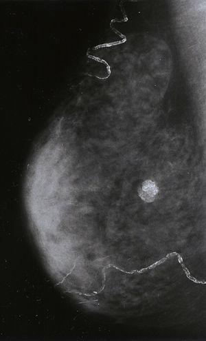 Proyección oblicua-mediolateral de la mama derecha. En la intersección de cuadrantes hay un nódulo redondeado de un 1cm, perfectamente delimitado y completamente calcificado.