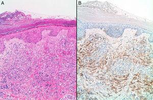 Angiosarcoma secundario afectando piel. A: HE, x40. B: D2-40 positivo.