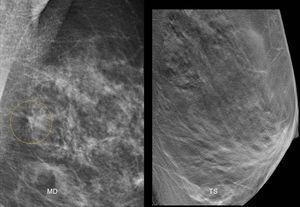 Paciente asintomática de 52 años. En la proyección oblicua mediolateral de la mama izquierda se identificó una posible imagen de distorsión (círculo). El estudio de TS resultó normal, ya que se trataba de una superposición tisular.