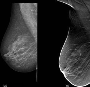 Paciente de 58 años que acudió para revisión preventiva. En el estudio convencional no se apreciaron alteraciones destacables. Sin embargo, en la TS se identificó un nódulo espiculado de 8mm. La biopsia demostró un carcinoma ductal infiltrante.