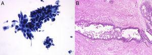 Citología líquida (A) de una lesión diagnosticada como carcinoma que en la histología (B) fue un fibroadenoma con focos de hiperplasia intraductal no atípica.