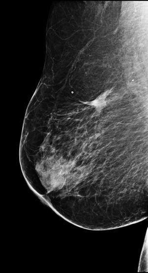 Paciente diagnosticada de carcinoma ductal infiltrante de 13mm y sometida a RFA a los 78 años, sin tratamiento quirúrgico posterior. Mamografía de seguimiento realizada 5 años más tarde. Se observa únicamente una densidad asimétrica residual, correspondiente a necrosis grasa.