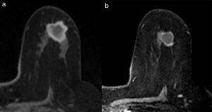 Respuesta radiológica parcial menor. a. RM pre-TPS. b. RM pos-TPS.