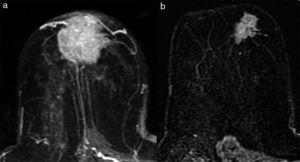 Respuesta radiológica parcial mayor: patrón morfológico tipo reducción concéntrica. a. RM pre-TPS. b. RM pos-TPS.