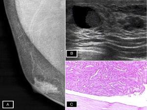 A) Nódulo retroareolar mama derecha. B) Quiste de 15mm con cápsula engrosada y crecimiento sólido en su interior (lesión papilar). C) Neoplasia epitelial tipo papilar delimitada por pared quística.