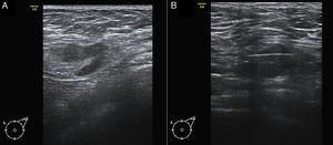 A) Imagen de ecografía axilar de una paciente de 58 años con carcinoma ductal infiltrante T2 Luminal B en mama izquierda, en la que se identificó un ganglio sospechoso con un engrosamiento cortical focal. B) BAG guiada por ecografía del ganglio. El resultado histológico fue de macrometástasis. La linfadenectomía demostró la presencia de 4 ganglios positivos.