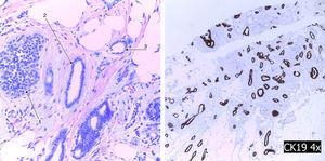 A la izquierda se muestra la tríada de Rosen: LCIS (1), cambios columnares (2) y carcinoma tubular (3). A la derecha se muestra la tinción inmunohistoquímica para citoqueranina-19.