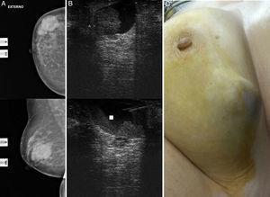 A) Mamografía derecha: imágenes nodulares superpuestas. B) Ecografía mamaria y (PAAF): nódulo heterogéneo de contenido quístico. C) Aspecto externo.