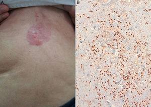 A) Imagen metástasis cutánea. B) Inmunohistoquímica que revela infiltración dermo-epidérmica de probable origen mamario.