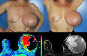 Initial presentation clinical and imagiologic (MRI) features (left breast with both cystic and solid areas, the last ones with a precocious contrast enhancement – type 2 curve).