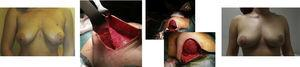 Mastectomía izquierda ahorradora de piel tipo I, biopsia de ganglio centinela, reconstrucción inmediata con prótesis directa retromuscular, autoinjerto de complejo aréola pezón previo análisis patológico intraoperatorio y simetrización con pexia de mama derecha en un solo tiempo (2 años de seguimiento).