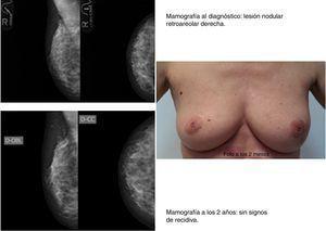 Caso clínico 2. Paciente de 50 años con diagnóstico de carcinoma ductal infiltrante (CDI) T1N0 en cuadrante ínfero externo (CIE) de la mama izquierda. Intervenida en marzo del 2011 (tumorectomía+BSGC) con exéresis de pieza quirúrgica de 4×5×2cm.