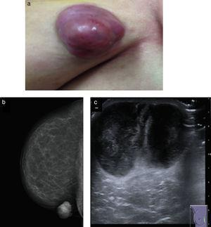 (a) Well-circumscribed, multilobe, nodular tumor. (b) Right breast mammography: dense, well-circumscribed, nodular lesion with a cutaneous cover, that is not associated to calcifications or alterations of the breast architecture. (c) Ultrasound: two adjacent heterogeneous, nodular masses that on the whole, measure 32×36×48mm.