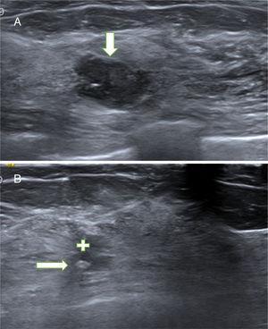 A. Papiloma atípico (PA). Paciente de 54 años con nódulo no palpable en la mama izquierda que se detectó en mamografía y ecografías de cribado. La ecografía mostró un nódulo sólido (hipoecogénico) de contornos polilobulados, parcialmente bien circunscrito, hallazgo BIRADS 4A. El diagnóstico de sospecha fue de fibroadenoma. La BAG obtuvo el diagnóstico de PA. La extirpación con BAV confirmó el diagnóstico de PA. B. Cicatriz con marcador. Control ecográfico a los 35 meses. La ecografía mostró un área irregular hipoecogénica (cruz blanca), estable desde el primer control a los 2 meses, relacionada con la fibrosis secundaria a la BAV. En el interior de la cicatriz se objetiva el marcador metálico (flecha) que se colocó después de la BAV para facilitar la localización del lecho de la biopsia por si el resultado hubiese sido un carcinoma papilar.
