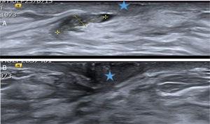 A. Papiloma atípico. Paciente de 40 años con secreción uniorificial de mama derecha. La ecografía mostró un probable PB (señalado por las cruces amarillas) dentro del ducto secretor dilatado, cercano al pezón (estrella azul). Hallazgo BIRADS 3. Se extirpó con BAV y el diagnóstico histológico fue de PA. B. Ecografía de control a los 26 meses. Se objetivó el área de la biopsia previa cercana al pezón (estrella azul), sin signos de lesión recidivante. Los cambios cicatriciales de la BAV previa no eran visibles. La secreción desapareció después de la BAV.