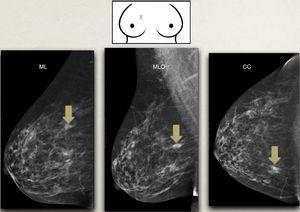 Correlación mamografía-exploración física-ecografía: se representa en el dibujo superior una lesión (X) en el cuadrante superointerno de la mama derecha y debajo su representación en las proyecciones mamográficas. Al estar en cuadrantes internos, la lesión aparece más inferior en la proyección MLO que en la ML. CC: craneocaudal; ML: mediolateral: MLO: mediolateral oblicua.