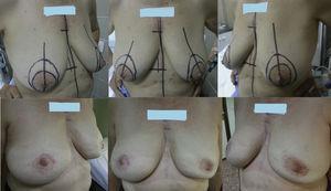 MAP-CAP bilateral por neoplasia bilateral mediante incisión tipo Roundblock.