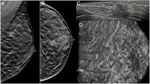 Mamografía en proyecciones oblicua y craneocaudal (A y B) en una paciente de 36 años, con un aumento de densidad con microcalcificaciones en el cuadrante superointerno. La lesión se identifica en el plano axial de ABUS como un nódulo con microcalcificaciones (C) y como un «agujero negro» en el plano coronal (D). El resultado histológico fue de neoplasia intraductal de alto grado.