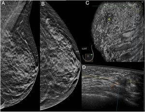 Mamografía en proyecciones oblicua y craneocaudal (A y B) que fue interpretada como BI-RADS 2 en una paciente de 67 años. Tanto en el plano coronal de ABUS (círculo en C) como en el plano axial (flecha en D) se visualiza una lesión nodular cuyo resultado histológico fue de carcinoma ductal infiltrante de grado intermedio.