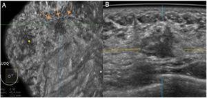 Imágenes de ABUS en planos coronal (A) y axial (B). Nódulo irregular y heterogéneo en el cuadrante superoexterno de la mama izquierda que resultó ser un carcinoma ductal infiltrante de grado intermedio en una paciente de 36 años. Nótese la línea artefactual que aparece en lesiones palpables (flechas).